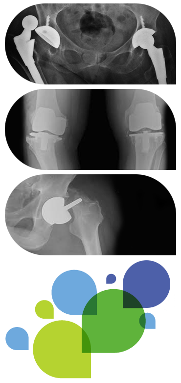 Dislocated hip replacement, Loose knee replacement and Fracture around a hip resurfacing